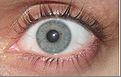 eye 14
