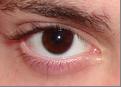 eye 15