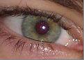 eye 6