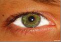 eye 8